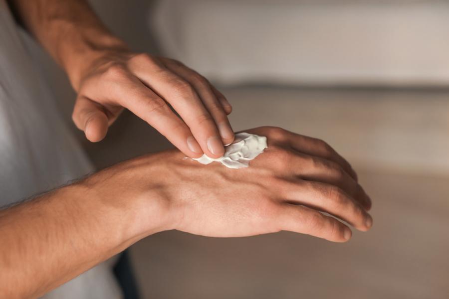 smeer jouw extreem droge handen in met alhydran dry cracked skin