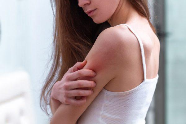 vrouw heeft jeuk door muggenbeet